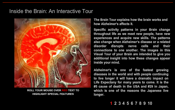 a tour of the brain Welcome to a 3d tour of the brain structures related to romantic love - and romantic rejection, too when you play the video, be sure to click on the little arrows to the bottom right of the video window to make it full-screen eternal thanks to our kickstarter backers who made this video possible we wanted to make the anatomy.