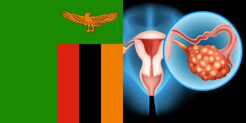 Ovary Cancer In Zambia